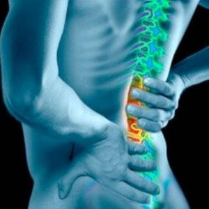 Se cè tosse a osteochondrosis